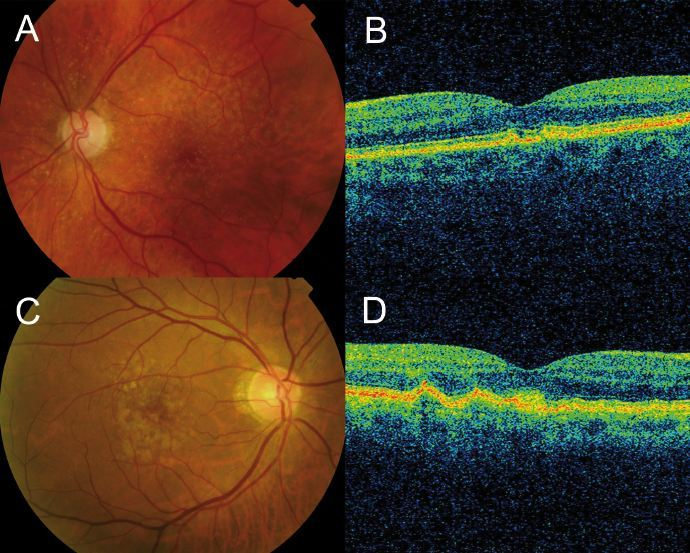 Macular Degeneration OCT scans